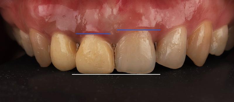 陶瓷貼片-牙齒矯正後-牙齒長度不一樣-牙齒正面照-沈志容醫師-桃園