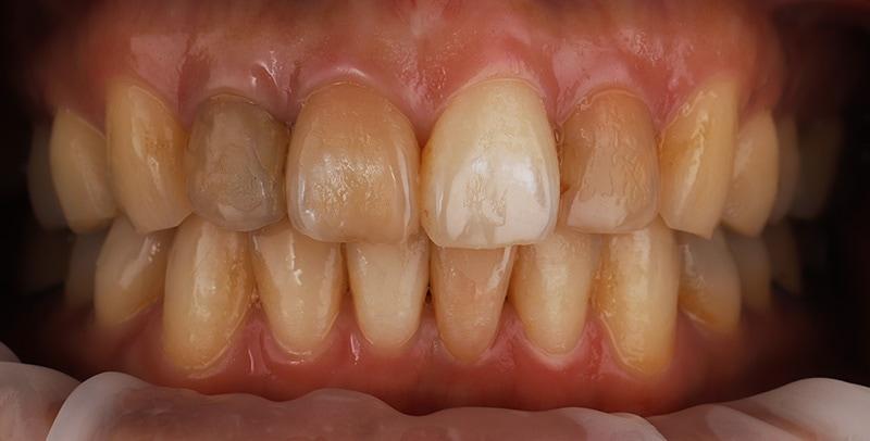陶瓷貼片-牙齒矯正後-牙齒黃-牙齒顏色不均-療程前-沈志容醫師-桃園