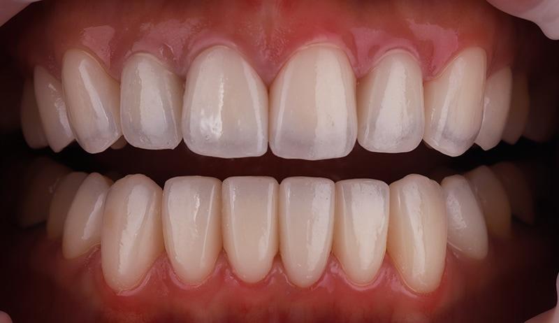 陶瓷貼片-牙齒矯正後-牙齒黃-牙齒顏色不均-療程後-沈志容醫師-桃園