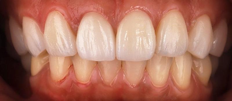 陶瓷貼片-牙齒矯正後-牙齦整形-瓷牙貼片-療程後-沈志容醫師-桃園