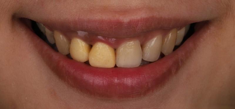 陶瓷貼片-牙齒矯正後-牙齦高低不齊-臉部外觀照-沈志容醫師-桃園