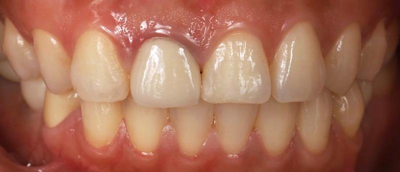 陶瓷貼片-牙齒矯正後-牙齦高度不對稱-沈志容醫師-桃園