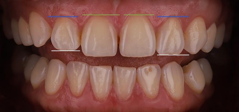 陶瓷貼片-牙齒矯正後-牙齦高度與牙齒切緣處高低比較-沈志容醫師-桃園