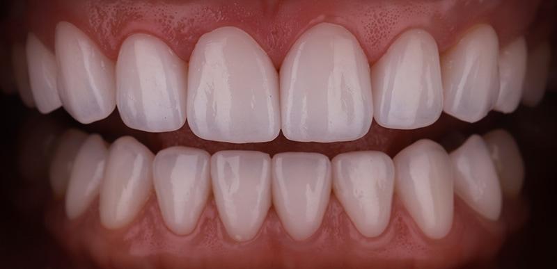 陶瓷貼片-牙齒矯正後-瓷牙貼片快速更改牙齒長度-沈志容醫師-桃園