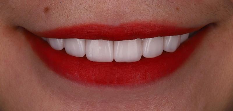 陶瓷貼片-牙齒矯正後-瓷牙貼片調整牙齒長度與對稱角度-沈志容醫師-桃園