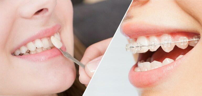陶瓷貼片-牙齒矯正-牙齒美白貼片-全瓷冠-微笑曲線-推薦-桃園-沈志容醫師