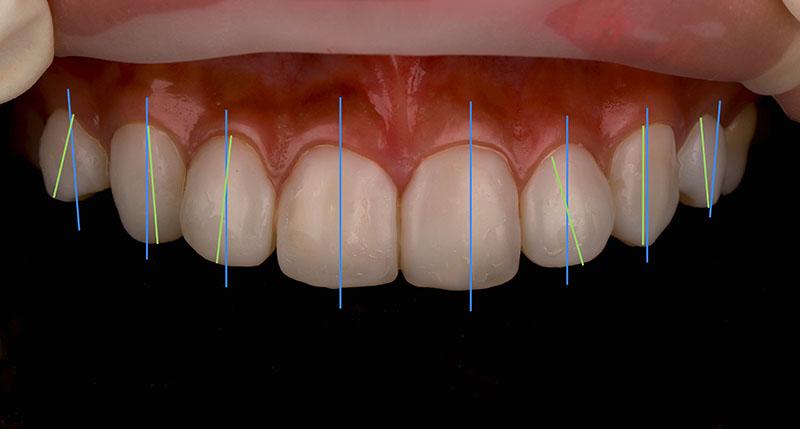 陶瓷貼片-牙齒貼片失敗-原牙齒與貼片預計的長軸線比較-沈志容醫師-桃園