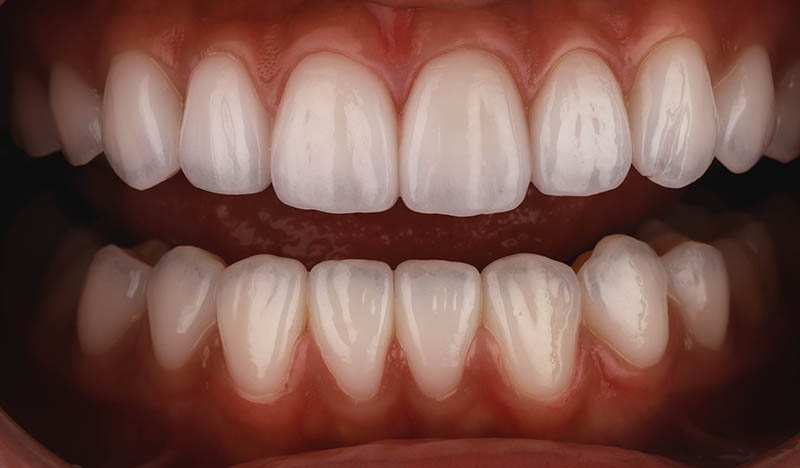 陶瓷貼片-牙齒貼片失敗-樹脂貼片拆換-完成後的陶瓷貼片-沈志容醫師-桃園