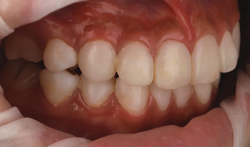 陶瓷貼片-牙齒貼片失敗-樹脂貼片拆換-陶瓷貼片前-右側牙齒近照-沈志容醫師-桃園