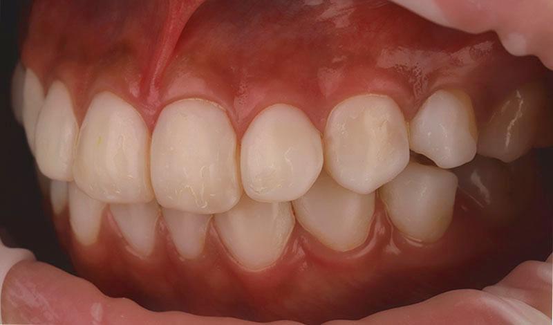 陶瓷貼片-牙齒貼片失敗-樹脂貼片拆換-陶瓷貼片前-左側牙齒近照-沈志容醫師-桃園