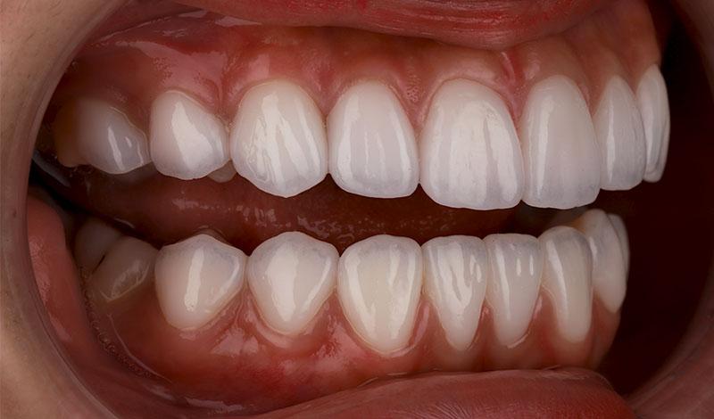 陶瓷貼片-牙齒貼片失敗-樹脂貼片拆換-陶瓷貼片後-右側牙齒近照-沈志容醫師-桃園