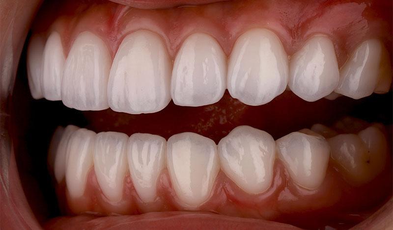 陶瓷貼片-牙齒貼片失敗-樹脂貼片拆換-陶瓷貼片後-左側牙齒近照-沈志容醫師-桃園