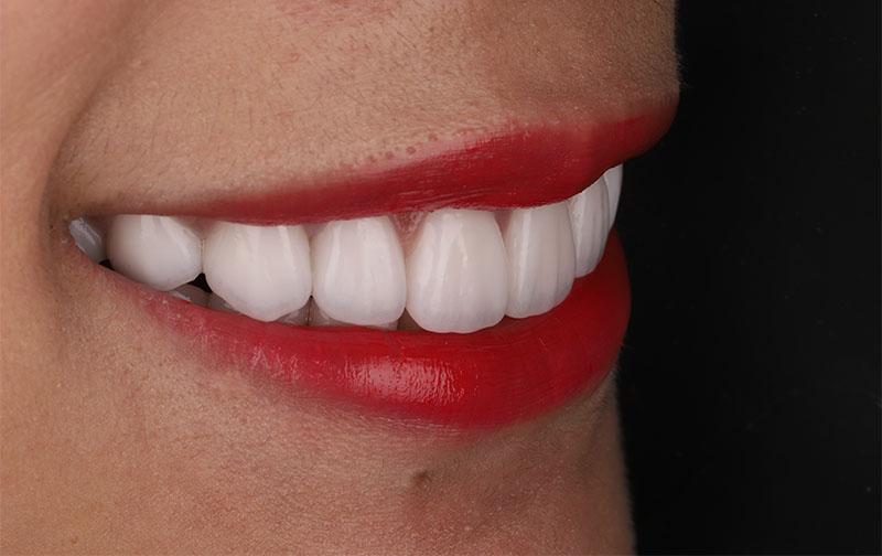 陶瓷貼片-牙齒貼片失敗-樹脂貼片拆換-陶瓷貼片療程後-右側口外照-沈志容醫師-桃園