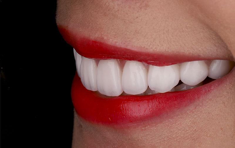 陶瓷貼片-牙齒貼片失敗-樹脂貼片拆換-陶瓷貼片療程後-左側口外照-沈志容醫師-桃園
