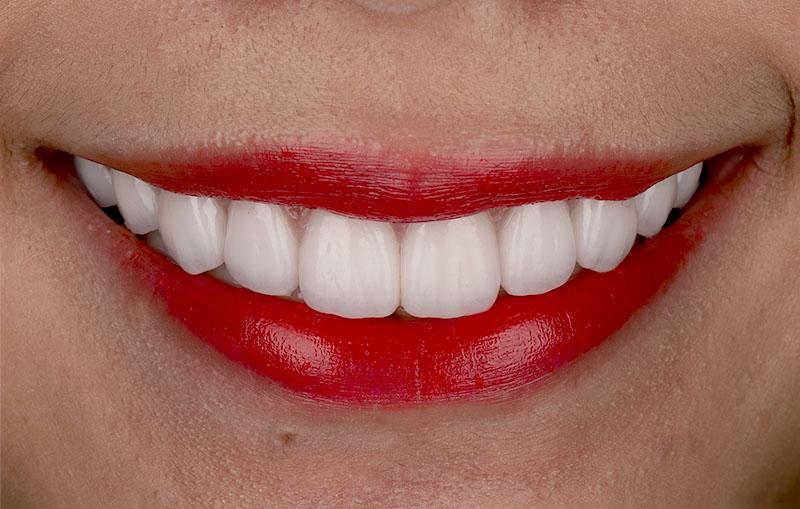 陶瓷貼片-牙齒貼片失敗-樹脂貼片拆換-陶瓷貼片療程後-正面口外照-沈志容醫師-桃園