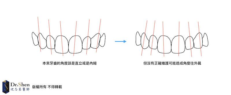 陶瓷貼片-牙齒貼片失敗-牙齒矯正後未正確維護-牙齒角度變化示意圖-沈志容醫師-桃園