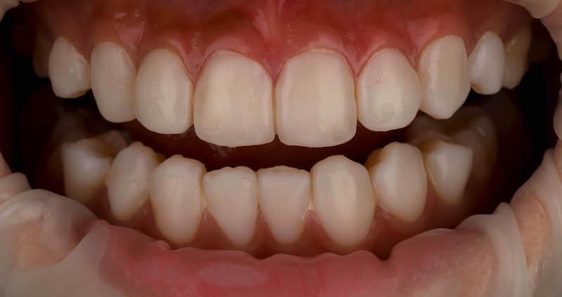 陶瓷貼片-牙齒貼片失敗-療程前失敗的樹脂貼片-沈志容醫師-桃園