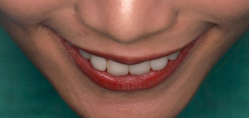 陶瓷貼片-牙齒貼片失敗-療程前樹脂貼片-牙齒角度外散-沈志容醫師-桃園