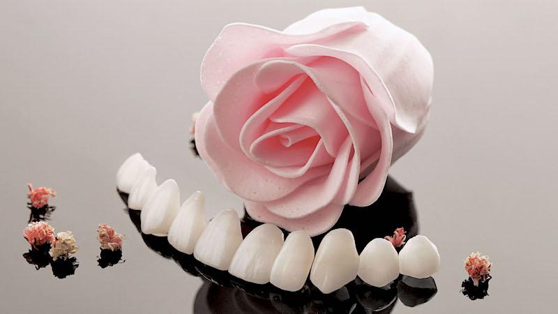 陶瓷貼片-牙齒貼片失敗-高度擬真的陶瓷牙齒貼片-沈志容醫師-桃園